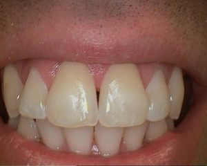 dental treatment after
