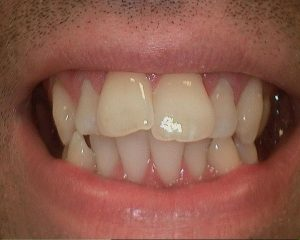 dental treatment before