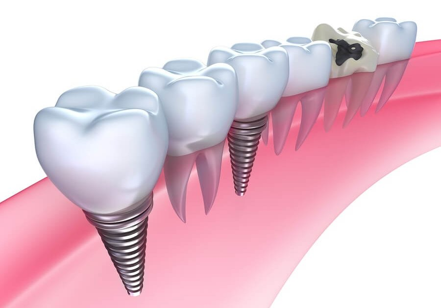 Dental Implants- The Woodlands, TX